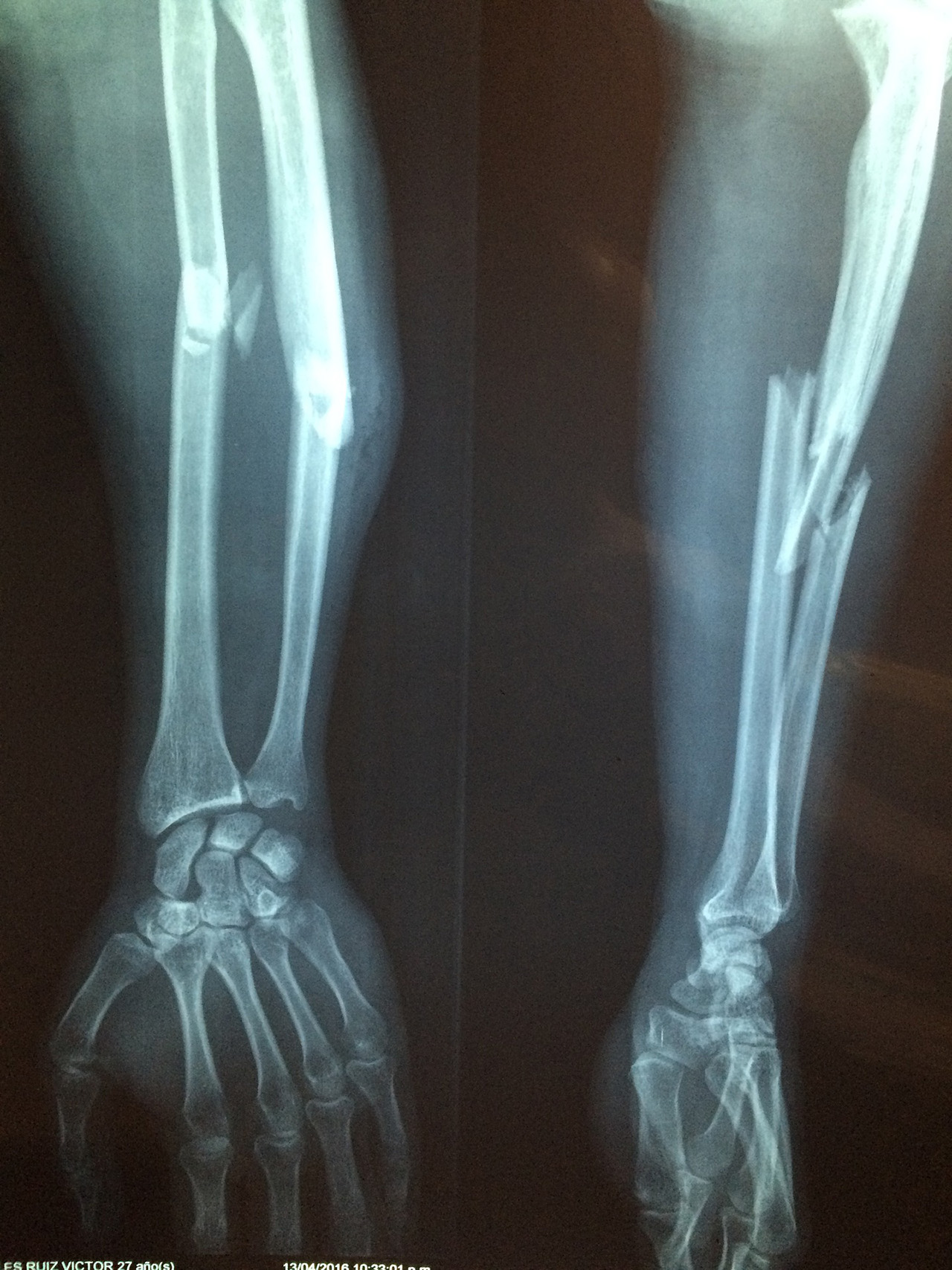 Arm Bone Structure