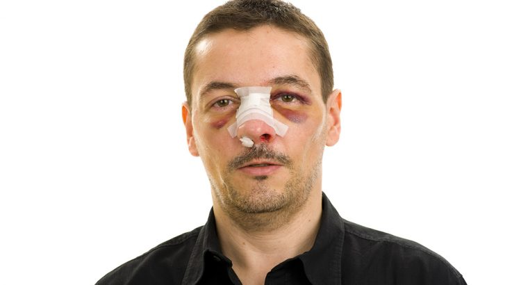 broken nose bone