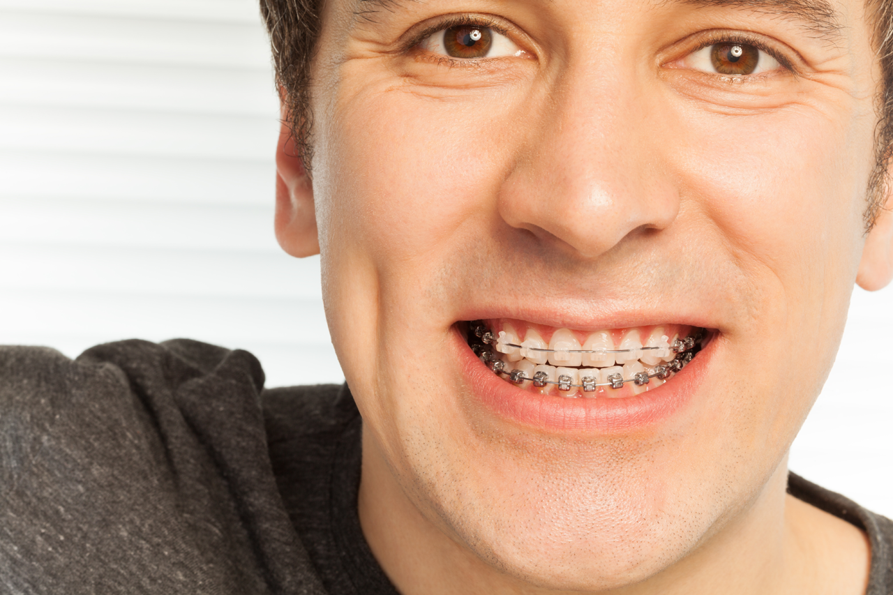 Traditional Orthodontic Solutions
