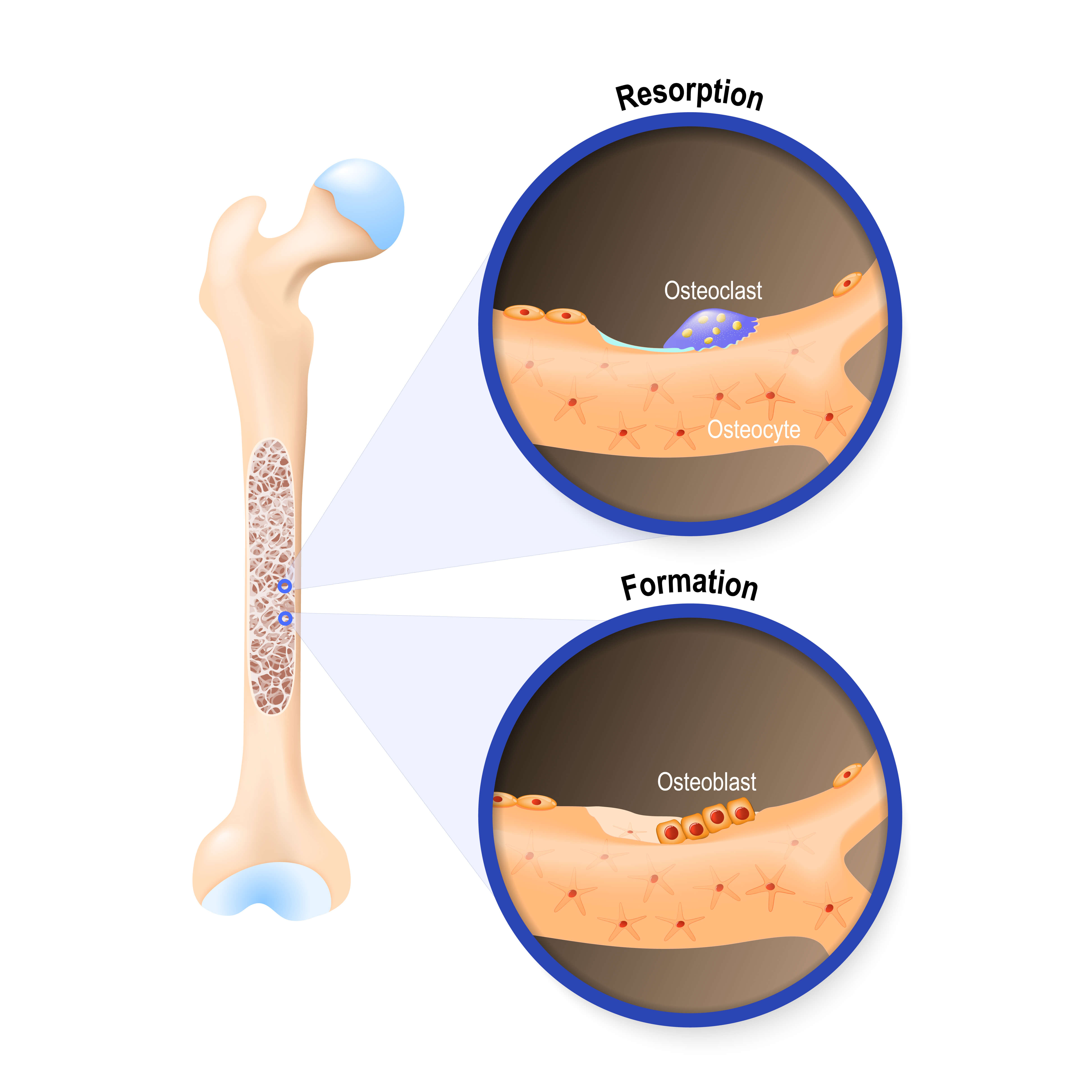 Understanding Bone Resorption