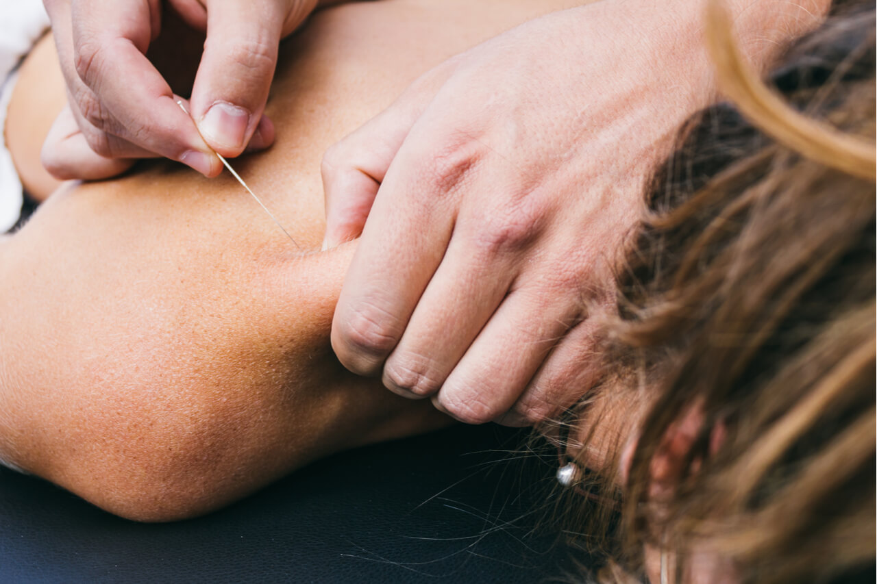 Muscle relief using dry needling: Is dry needling safe?