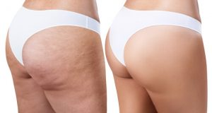 Cellulite Massage Before After