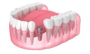 A sample of dental implant metal screw-like post.
