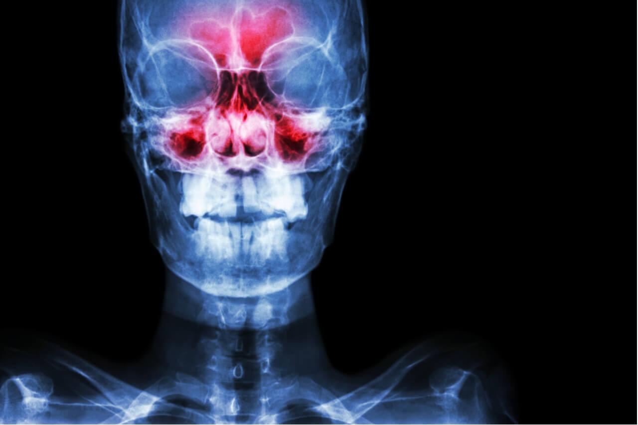 Information About Nose Bone Anatomy
